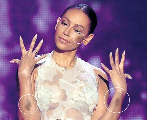 Во время недавнего телешоу «X Factor» зрители смотрели не на участников конкурса, а пялились на синяки члена жюри - Мел БИ