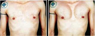 ГРУДЬ БЫВШЕГО СПЕЦНАЗОВЦА: до и после операции