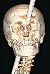 РЕНГЕНОВСКИЙ СНИМОК: штырь прошел в нескольких миллиметрах от мозга