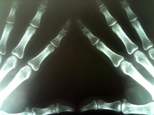 Жутковатый привет из рентгеновского аппарата. Michael Dorausch / Flickr.com